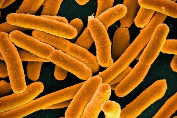 Óriási tudományos siker: szén-dioxiddal táplálkozó baktériumot fejlesztettek  Izraelben