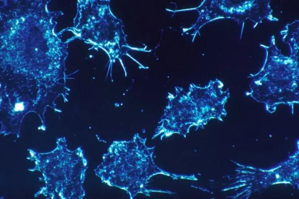 Felelőtlenség vagy igaz lehet: Megtalálta Izrael a rák ellenszerét
